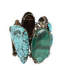 Iradj Moini Blue Malachine Turquoise and Tiger Eye Bracelet