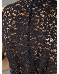 Dolce & Gabbana Black Lace Waistcoat