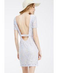 Forever 21 Blue Floral Lace Scoop-back Dress