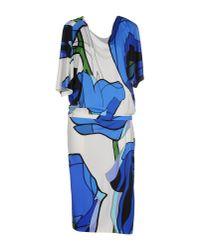 Iceberg - Blue Knee-length Dress - Lyst