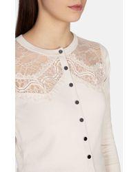 Karen Millen White Lace Trim Collection