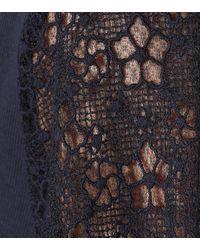 See By Chloé Blue Top aus Baumwolle mit Spitze