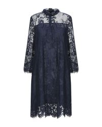 Dv Roma Blue Kurzes Kleid