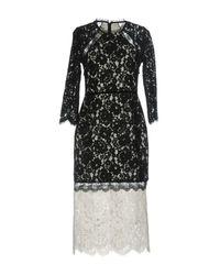 Alexis Black Knee-length Dress