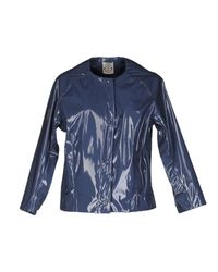 So Nice | Blue Jacket | Lyst
