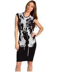 McQ by Alexander McQueen Xray Dress - Lyst