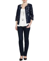 East - Lace Jacket - Lyst