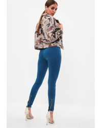 Missguided - Blue Lawless Zip Back Super Soft Stone Wash Jeans - Lyst