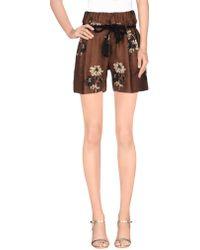 Shirtaporter - Shorts - Lyst