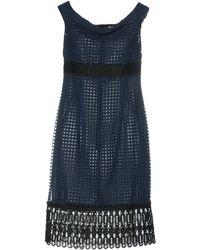 Clips - Knee-length Dresses - Lyst