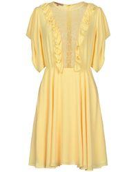 Betty Blue Short Dress - Yellow