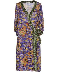 Just In Case - Knee-length Dress - Lyst