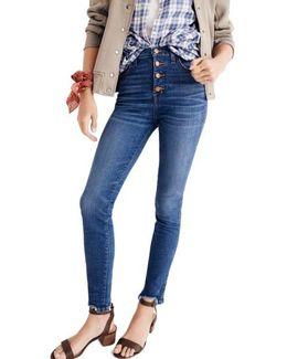 10-inch Chewed Hem Skinny Jeans