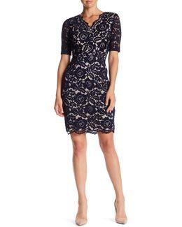 Scallop Lace Dress