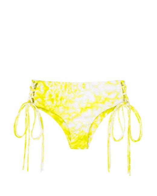 Mikoh Swimwear Yellow Vanuatu Lace-up Sides Cheeky Bikini Bottom