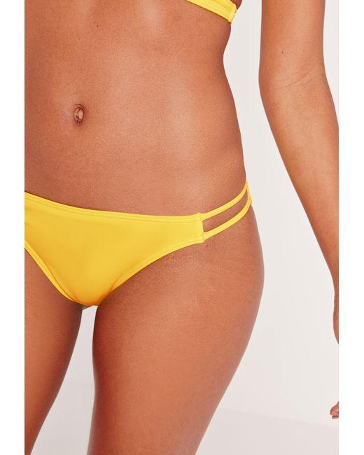 Missguided Double Strap Bikini Bottoms Yellow - Mix ... - photo #16
